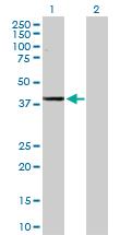 Western blot - Anti-ADH1C antibody (ab168748)
