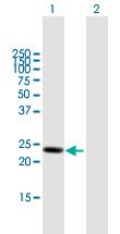 Western blot - Anti-Lysophospholipase 1 antibody (ab168773)