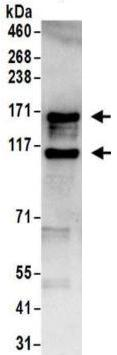 Immunoprecipitation - Anti-ADAR1 antibody (ab168809)