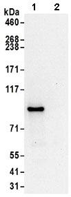 Immunoprecipitation - Anti-ASCC2 antibody (ab168811)