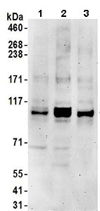 Western blot - Anti-KIF18B antibody (ab168812)