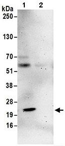 Immunoprecipitation - Anti-NIP7 antibody (ab168814)