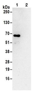 Immunoprecipitation - Anti-CAMKK2 antibody (ab168818)