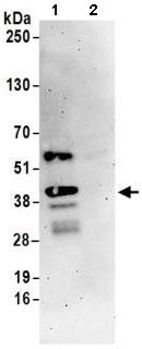 Immunoprecipitation - Anti-SLBP antibody (ab168822)