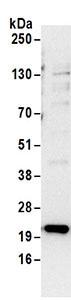Immunoprecipitation - Anti-RPS5 antibody (ab168823)