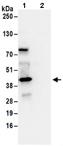 Immunoprecipitation - Anti-SEC13L1 antibody (ab168824)