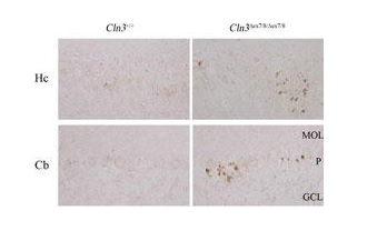 Immunohistochemistry (Formalin/PFA-fixed paraffin-embedded sections) - Anti-LC3B antibody - N-terminal (ab168831)