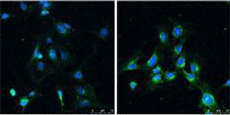 Immunocytochemistry/ Immunofluorescence - Anti-LC3B antibody - N-terminal (ab168831)