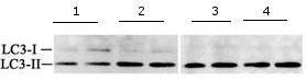 Western blot - Anti-LC3B antibody - N-terminal (ab168831)