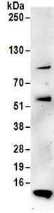 Immunoprecipitation - Anti-TIMM8A antibody (ab168835)