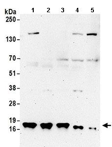 Western blot - Anti-TCEB2 antibody (ab168836)