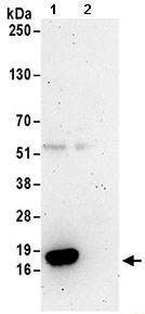 Immunoprecipitation - Anti-TCEB2 antibody (ab168836)
