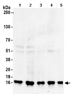 Western blot - Anti-RPS19 antibody (ab168840)