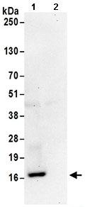 Immunoprecipitation - Anti-RPS19 antibody (ab168840)