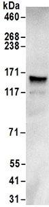 Immunoprecipitation - Anti-GRIP1 antibody (ab168848)