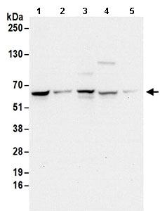 Western blot - Anti-EDC3 antibody (ab168851)