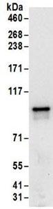 Immunoprecipitation - Anti-FXR2 antibody (ab168852)