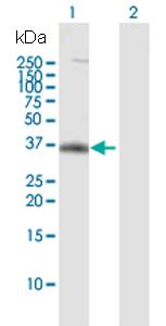 Western blot - Anti-P2Y1 antibody (ab168918)
