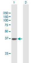Western blot - Anti-Solute carrier family 22 member 18 antibody (ab168960)