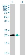 Western blot - Anti-DUSP14 antibody (ab168969)