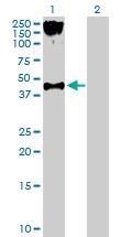 Western blot - Anti-P2Y2 antibody (ab168984)