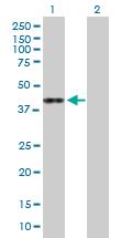 Western blot - Anti-ASRGL1 antibody (ab168992)