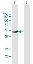 Western blot - Anti-HKDC1 antibody (ab169006)