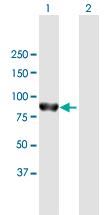 Western blot - Anti-PTPN22 antibody (ab169040)