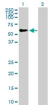Western blot - Anti-TRIM46 antibody (ab169044)