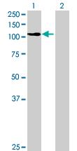 Western blot - Anti-PALD antibody (ab169051)