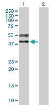 Western blot - Anti-TRA2A antibody (ab169052)