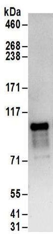 Immunoprecipitation - Anti-ZC3H14 antibody (ab169061)