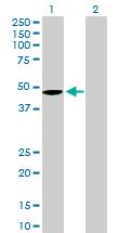 Western blot - Anti-Wnt5b antibody (ab169071)