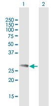 Western blot - Anti-Ndfip1 antibody (ab169094)
