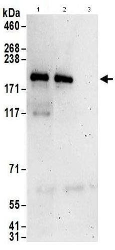 Immunoprecipitation - Anti-ZNF423 antibody (ab169096)