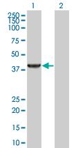 Western blot - Anti-Sarcosine Oxidase antibody (ab169102)