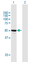 Western blot - Anti-MINA53 antibody (ab169154)