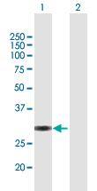 Western blot - Anti-VGLL1 antibody (ab169163)