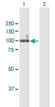 Western blot - Anti-ITGB6 antibody (ab169271)