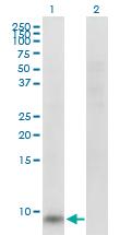 Western blot - Anti-GNG11 antibody (ab169274)
