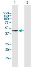 Western blot - Anti-GTF2H2  antibody (ab169288)