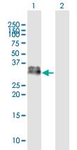 Western blot - Anti-Kallikrein 1 antibody (ab169291)