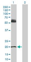 Western blot - Anti-KRT81 antibody (ab169303)