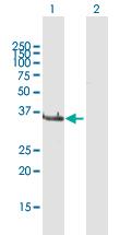 Western blot - Anti-LCMT1 antibody (ab169337)