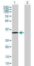 Western blot - Anti-P2Y8 antibody (ab169392)