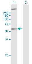 Western blot - Anti-GPCR GPR34 antibody (ab169455)