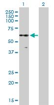 Western blot - Anti-PKNOX2 antibody (ab169458)