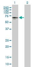 Western blot - Anti-PHD4/prolyl hydroxylase antibody (ab169483)