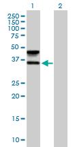 Western blot - Anti-FUT6 antibody (ab169490)
