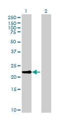 Western blot - Anti-OAZ3 antibody (ab169516)